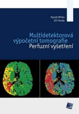 Multidetektorová výpočetní tomografie - Hynek Mírka; Jiří Ferda